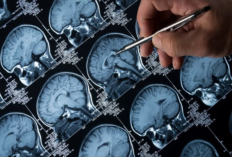 Epilepsia. El juicio médico imprescindible para conducir
