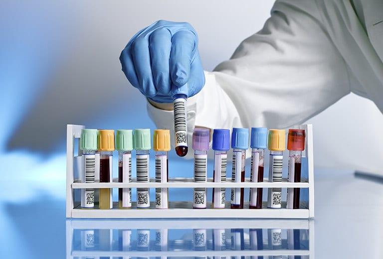 Linfomas y enfermedades malignas de las células plasmáticas, y su repercusión al volante