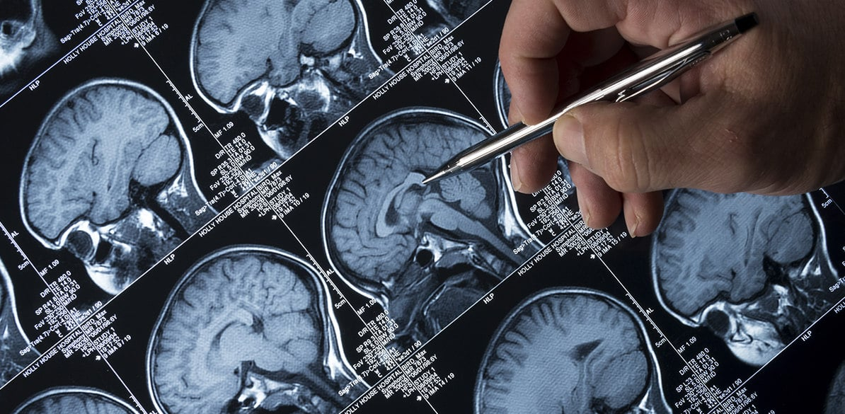 Epilepsy is an intermittent disorder of the nervous system